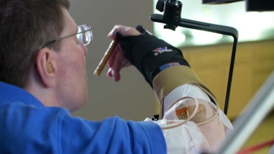 Quadriplegic man's arm and hand brought back to life by thought-control tech
